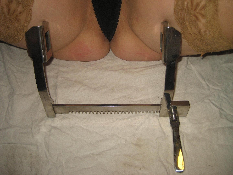 analdehnung prostatareizung